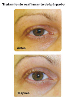 Eyelid Firming Treatment