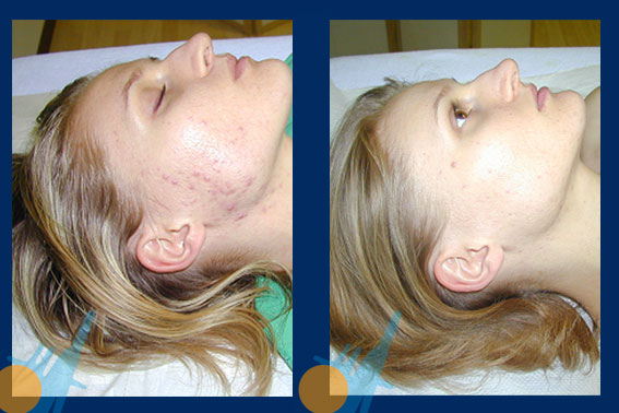 Acne Treatment for Womens