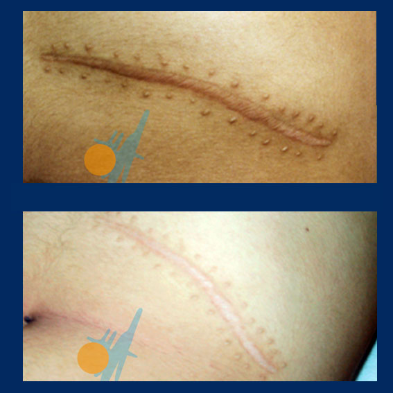 Scars Treatment - Caesarean, Keloid, Hypertrophic - Capenergy