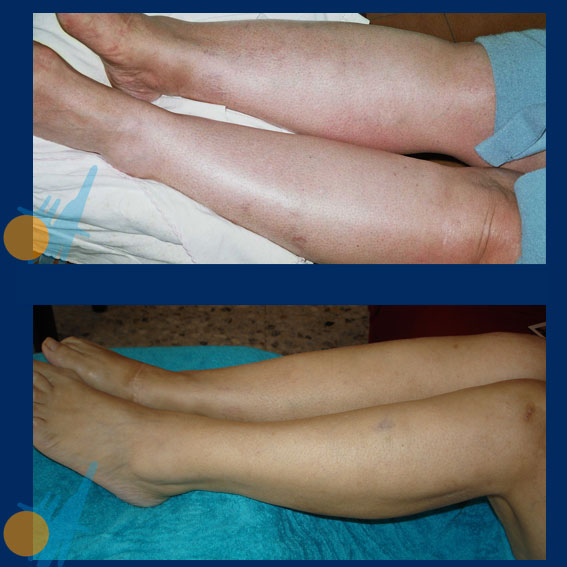 Phlebitis and Lymphedemas Treatment