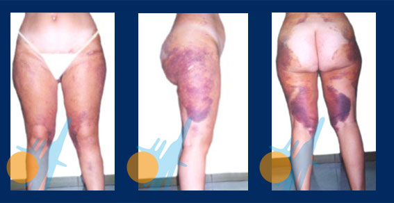 Hematomas Treatment - Capenergy