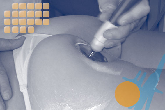 How To Treat Buttocks Firming